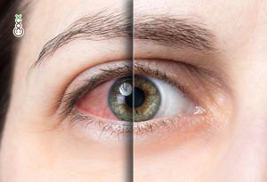 Why your eyes turn red after smoking cannabis